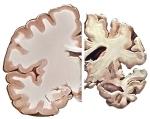 Healthy_Brain_Alzheimers_Brain
