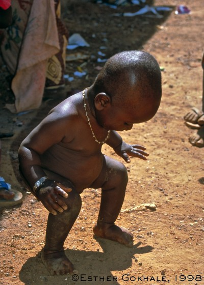 This Burkina baby was patterned to externally rotate his legs as he was carried on his mother's back