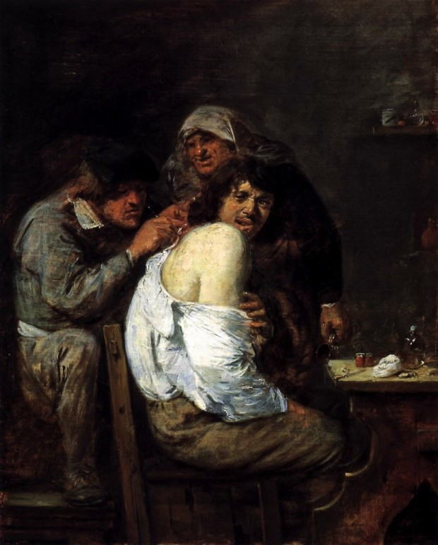 """Adriaen Brouwer's 'The Back Operation,' 1636, captures only some of the pain of my surgical interventions."""