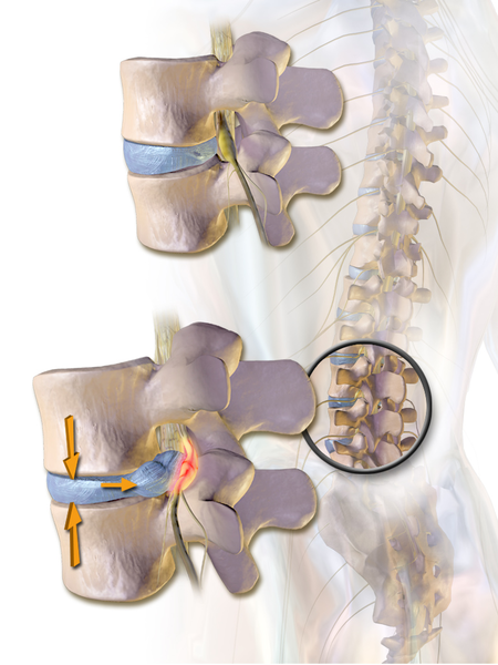 Contrast the herniated lumbar disc impinging upon the spinal nerve, at bottom, with the healthy disc, at top