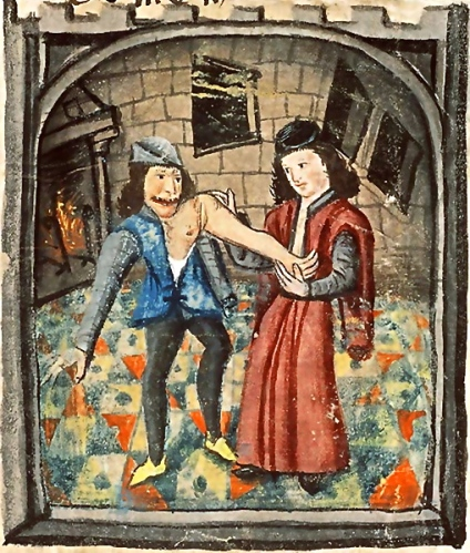 Physician setting a dislocated arm, France, circa 1450